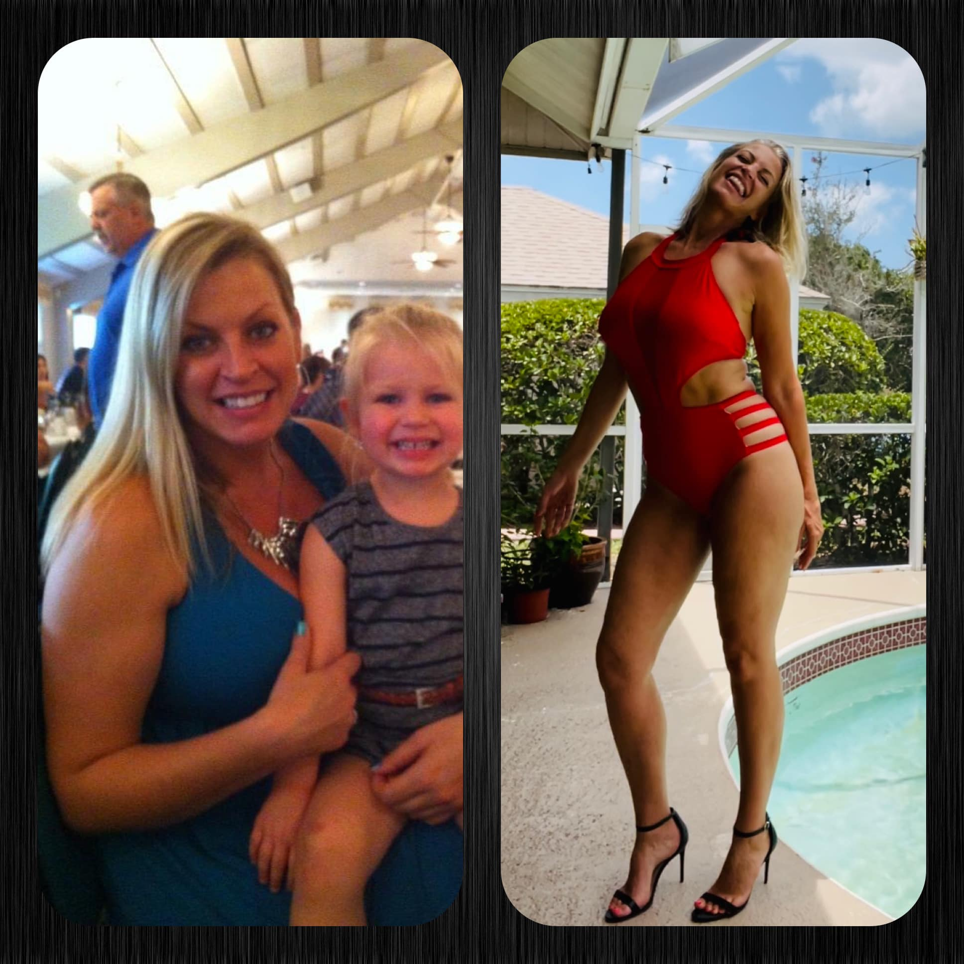 Mandy Before and After Body Freedom